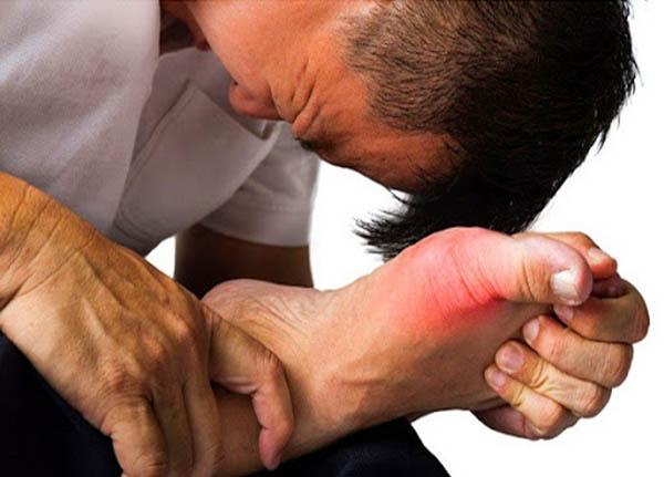 Điều trị bệnh gout từ vị thuốc mật nhân an toàn và hiệu quả