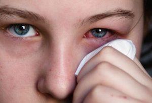 Các triệu chứng và cách điều trị bệnh đau mắt đỏ
