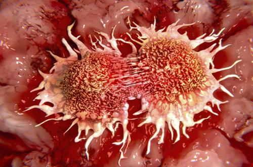 Phát động ngày thế giới phòng chống ung thư