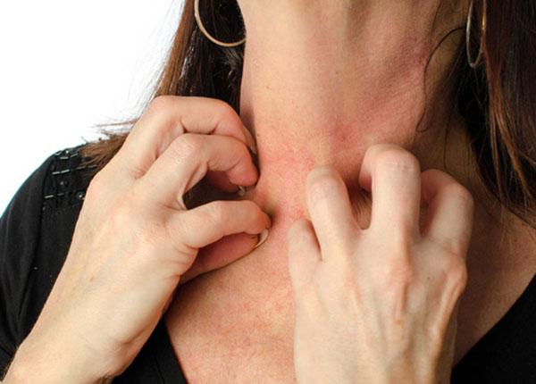 Bệnh dị ứng là gì và có thể điều trị bệnh dị ứng như thế nào?