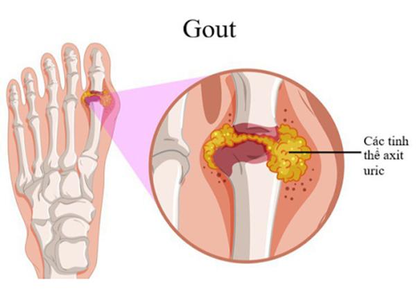 Bệnh thống phong là một bệnh chuyển hóa có triệu chứng nổi bật ở các khớp
