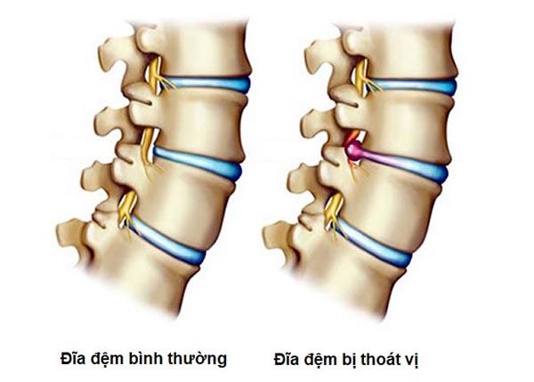 Bệnh thoát vị đĩa đệm là căn bệnh xương khớp nguy hiểm và phổ biến