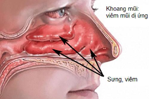 Dược sĩ mách bạn một số cách chữa viêm mũi dị ứng ngay tại nhà