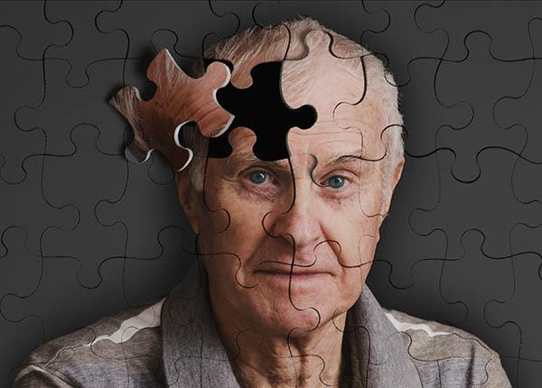 Suy giảm trí nhớ ở tuổi già là do sự thoái hóa không ngừng của não bộ