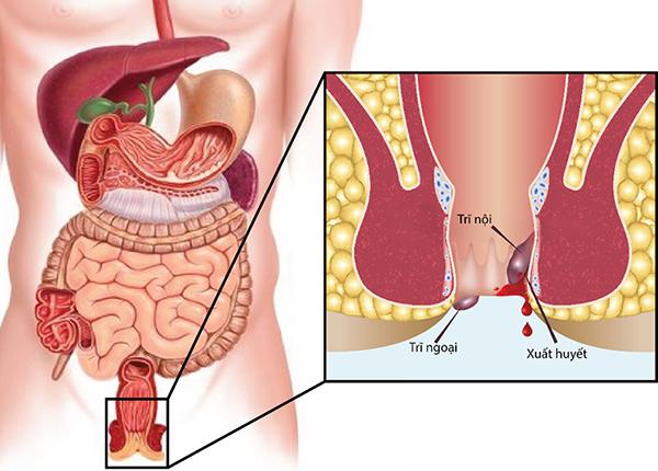 Trĩ là bệnh rất phổ biến, đứng hàng đầu trong các bệnh lý vùng hậu môn – trực tràng