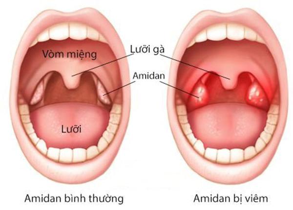 Viêm amidan là tình trạng amidan bị nhiễm trùng, sưng, đau