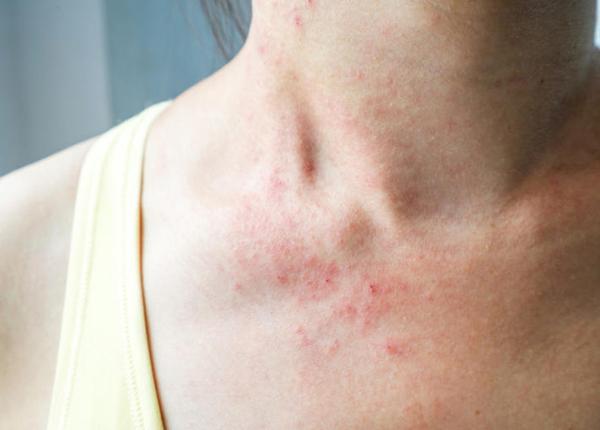 Viêm da cơ địa là một loại bệnh khá phổ biến hiện nay