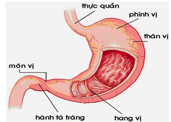 Viêm hang vị dạ dày là bệnh chủ yếu do vi khuẩn HP gây ra