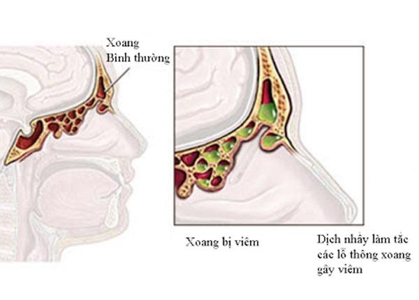Viêm xoang là một bệnh lý liên quan đến đường hô hấp