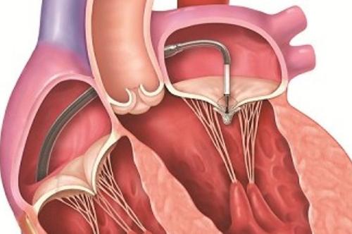Khi bệnh hẹp van tim đã nặng cần dùng phương can thiệp và phẫu thuật