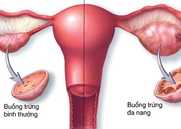 Tìm hiểu hội chứng đa nang buồng trứng