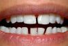 """Cách khắc phục """"răng cửa to"""" hiệu quả"""