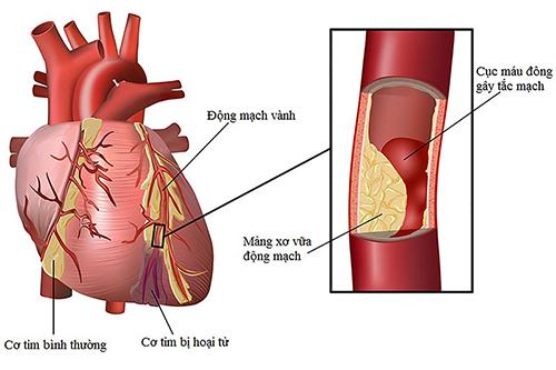 Thay đổi lối sống lành mạnh để việc điều trị bệnh thiếu máu cơ tim được tốt hơn