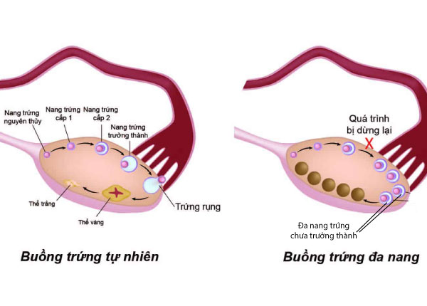 Hình ảnh cho thấy nguyên nhân đa nang buồng trứng