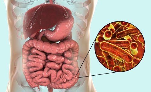 Nguyên nhân gây bệnh lỵ trực khuẩn