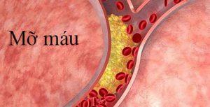 Những món ăn giúp giảm mỡ máu phát huy tác dụng tốt