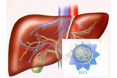 Viêm gan E là bệnh gì và triệu chứng thường gặp là gì?